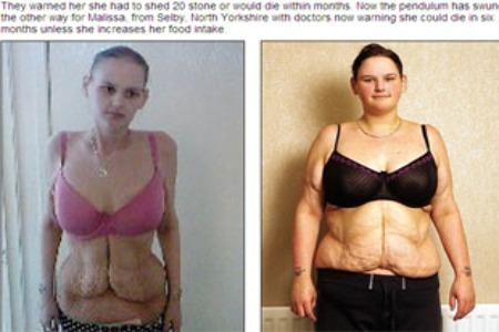 mujeres gordas del estómago