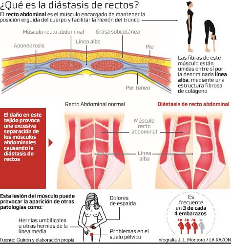 linea media abdominal en el embarazo