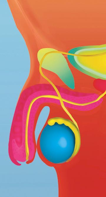 diferencia entre cáncer de colon y próstata