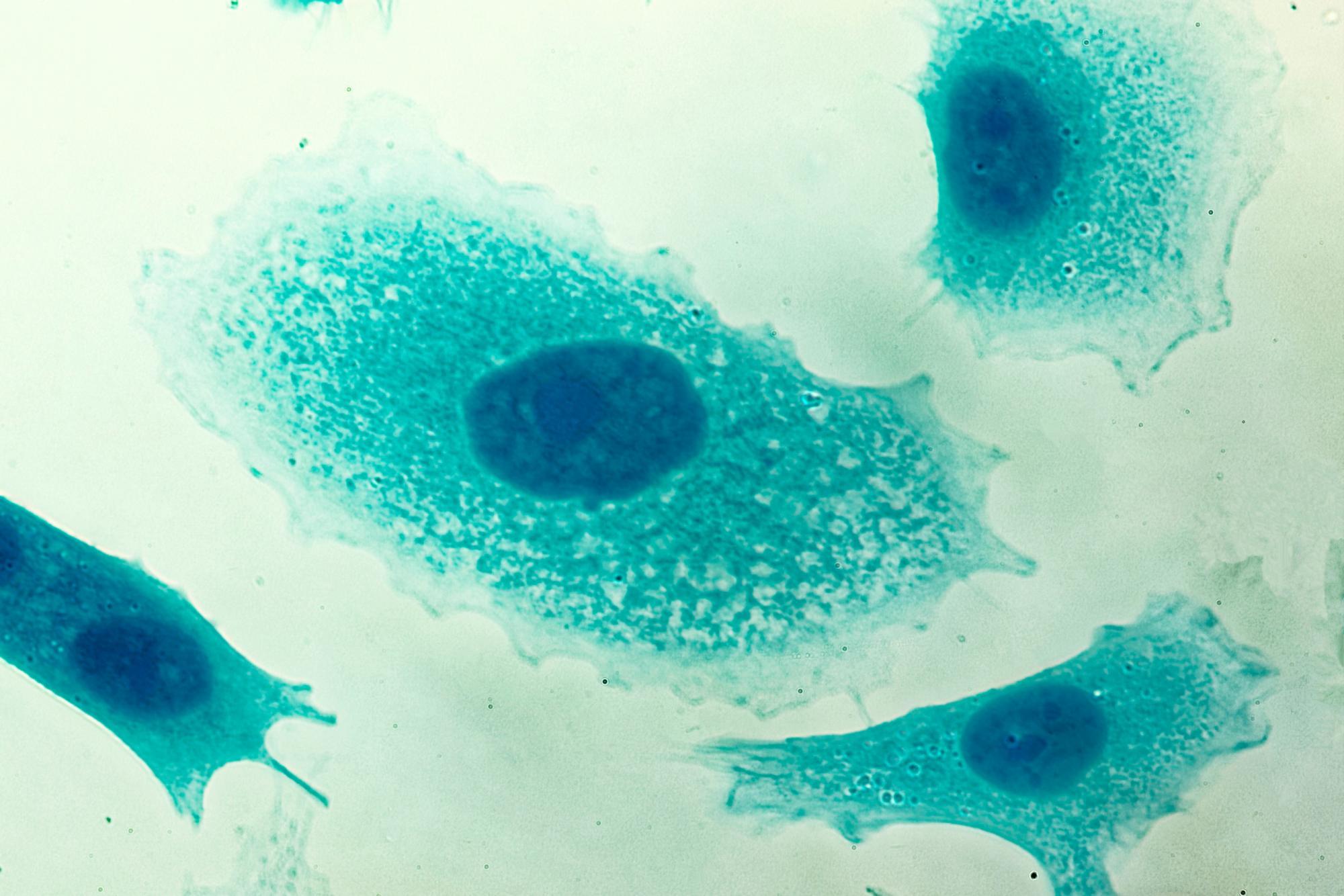 cáncer de próstata y dosis de radiación