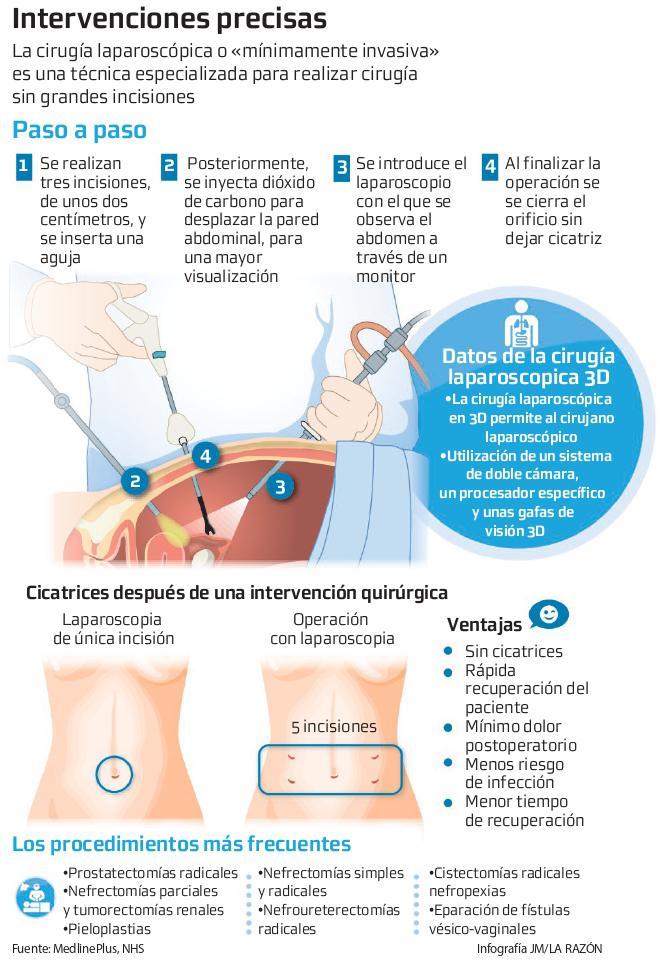 anatomía quirúrgica de la próstata pdf y