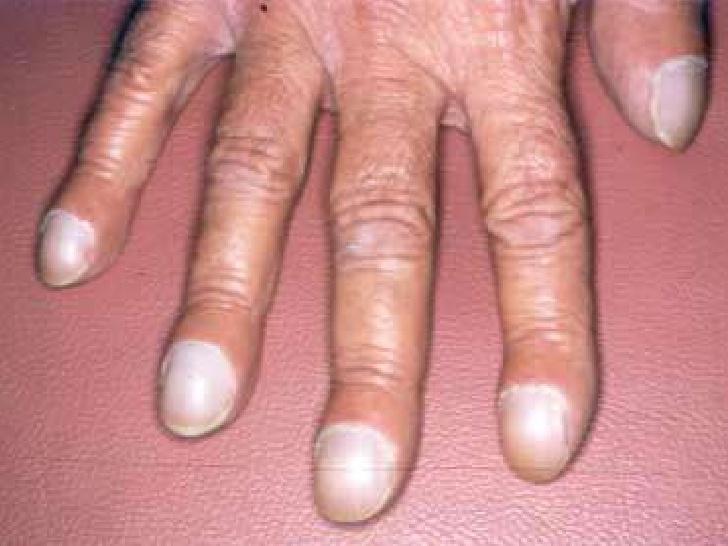 Los dedos de las manos y pies en palillo de tambor se pueden presentar rápidamente, a menudo en cuestión de semanas y en cuanto se trata la causa desaparece