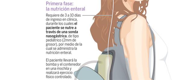tratamientos para bajar de peso sin rebote en español