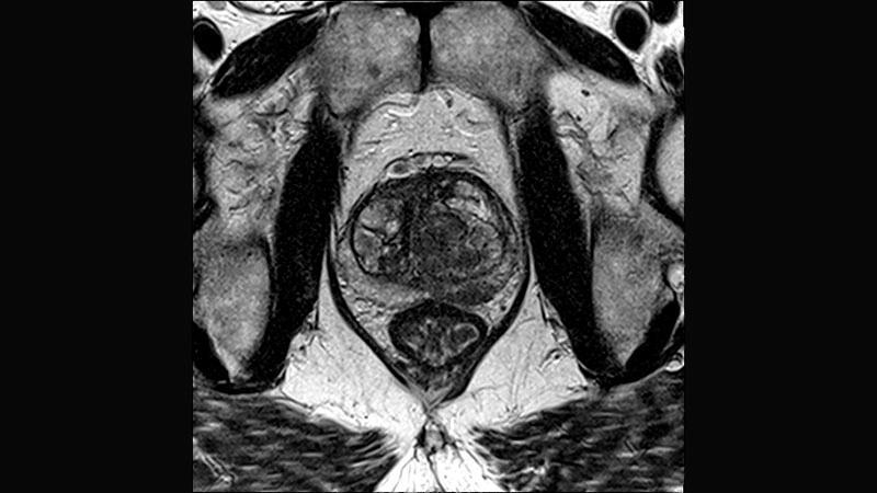 próstata de grado 2 que significa en español