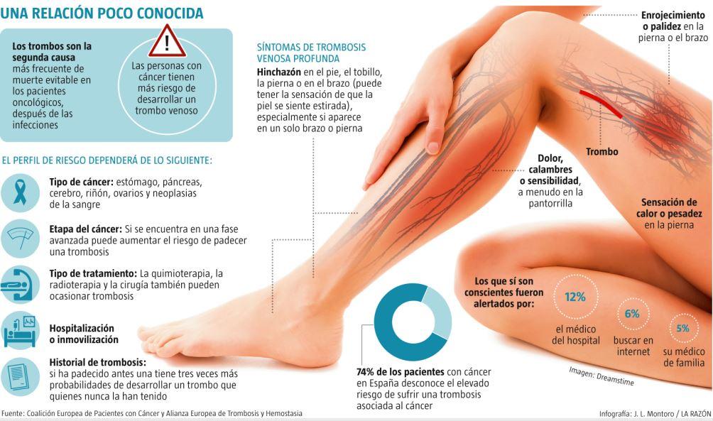 trombosis en los pies tratamiento