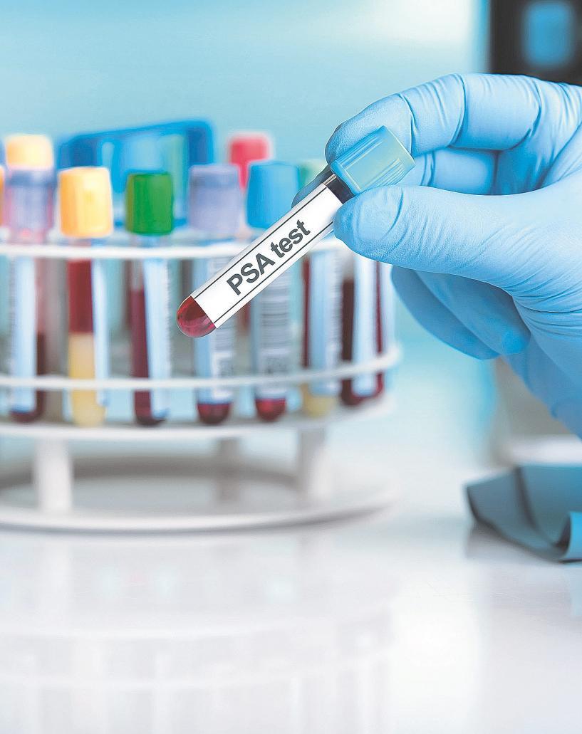 efectos secundarios del tratamiento hormonal para el cancer de prostata