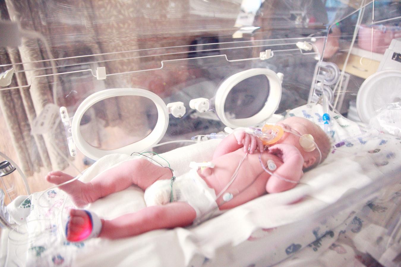 bebes prematuros de 34 semanas de diabetes gestacional